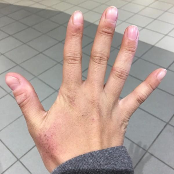 刚离开harnas时候的手……粗糙 伤痕累累